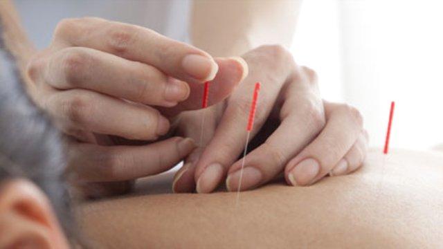 Akupunktur İle Zayiflama Etkili Mi?