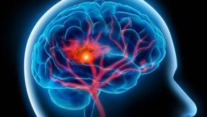 Beyin Hastalıkları Sebepleri