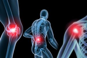 Osteoartrit Tedavisi
