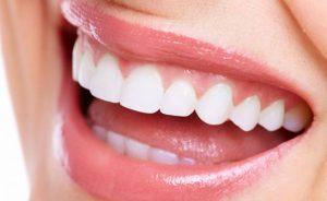 Diş beyazlatma uygulaması  nasıl yapılıyor