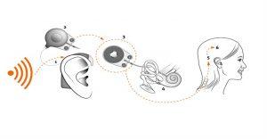 TÜSODER Biyonik Kulak (Koklear Implant ) Ameliyatları Raporunu Açıkladı