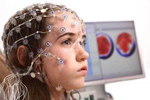 EEG ne amaçla çekilir