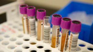 Yeni araştırmalar Covid – 19 hastalığında plazma tedavisinin etkisiz olduğunu ortaya koydu