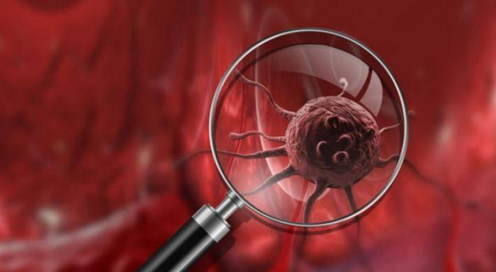 Pürinler kanser gelişimini etkiler mi?